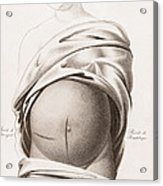 Cesarean Section, Incisions Acrylic Print