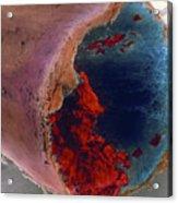 Coloured Sem Of A Blood Clot In Coronary Artery Acrylic Print