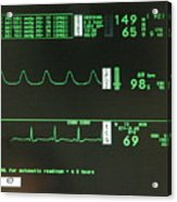 Ecg Monitor Screen. Acrylic Print