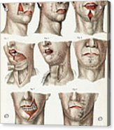Facial Surgery, Illustration, 1846 Acrylic Print