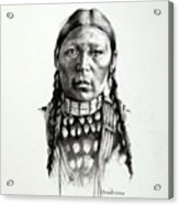 Freckle Face Acrylic Print