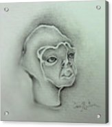 Jim The Man Born Without Hair Follicles Alopecia Universalis  Acrylic Print