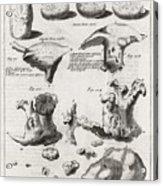 Kidney Stones, 18th Century Acrylic Print