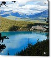 Lake Louise Chalet Acrylic Print