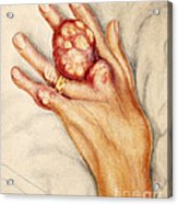 Left Hand With Tophus From Chronic Gout Acrylic Print