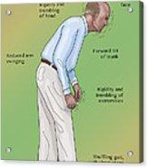 Man With Parkinsons Disease Acrylic Print