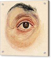Melanoma Of Iris, Medical Illustration Acrylic Print