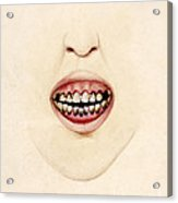 Mouth Of Gouty Patient, Illustration Acrylic Print