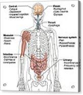Multiple Sclerosis Symptoms Acrylic Print