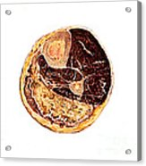 Muscle Degeneration, Fibrosis And Fat Acrylic Print