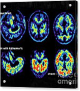 Normal And Alzheimer Brains, Pet Scans Acrylic Print