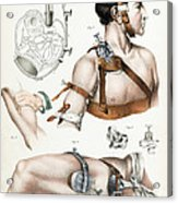 Operative Surgery, Illustration, 1846 Acrylic Print
