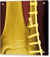 Pinned Ankle Fracture, Coloured X-ray Acrylic Print