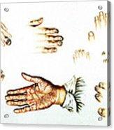 Psoriasis, Syphilis, Onychomycosis Acrylic Print