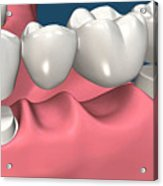 Restorations For Missing Teeth Implants, Dentures And Bridges Acrylic Print