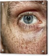 The Human Eye Acrylic Print