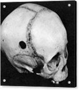 Trepanning: Skull Acrylic Print