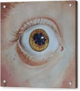 What's The Matter With Uveitis? Acrylic Print