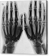 X-ray Of Two Normal Hands, 1896 Acrylic Print