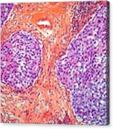 Breast Cancer, Light Micrograph Acrylic Print
