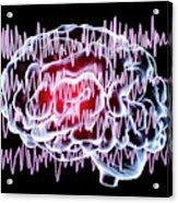 Brain And Brain Waves In Epilepsy Acrylic Print