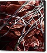 Candida And Epithelial Cells Canvas Print by David M. Phillips