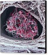 Blood Clot Canvas Print by Science Photo Library