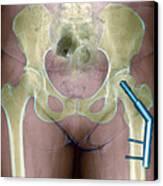 Fractured Femur Canvas Print by Du Cane Medical Imaging Ltd