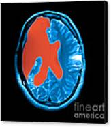 Mri Shows Near Total Hemispherectomy Canvas Print by Medical Body Scans