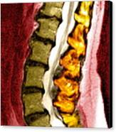 Spine Degeneration, Mri Scan Canvas Print by Du Cane Medical Imaging Ltd