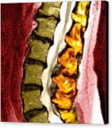 Spine Degeneration, Mri Scan Canvas Print