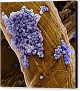 Streptococcus Pneumoniae Bacteria, Sem Canvas Print by Steve Gschmeissner