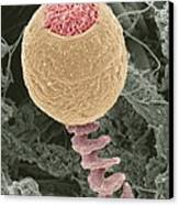 Vorticella Protozoan, Sem Canvas Print by Steve Gschmeissner