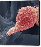 Cervical Cancer Cell, Sem Canvas Print by Steve Gschmeissner
