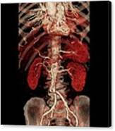 Aortic Aneurysm Ct Scan Canvas Print