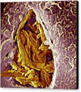 Macrophage Engulfing Tuberculosis Vaccine Canvas Print by