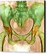 Osteoarthritis Of Hip Joints, X-ray Canvas Print by