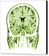 Normal Coronal Mri Of The Brain Canvas Print by Medical Body Scans