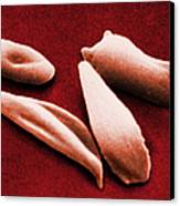 Sickle Red Blood Cells Canvas Print