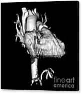 3d Ct Reconstruction Of Heart Canvas Print by Medical Body Scans