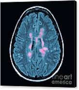 Mri Of Multiple Sclerosis Canvas Print