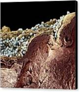 Pyoderma Skin Disease, Sem Canvas Print by Steve Gschmeissner