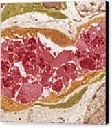 Abnormal Blood Clot, Tem Canvas Print
