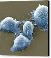 Cervical Cancer Cells, Sem Canvas Print by Steve Gschmeissner
