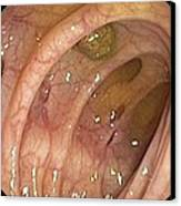 Diverticular Disease Of The Colon Canvas Print by Gastrolab