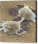 Dividing Cancer Cell, Sem Canvas Print by Steve Gschmeissner