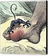 Gout, 18th-century Caricature Canvas Print