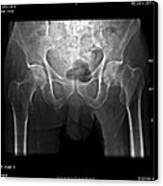 Hip Fracture, Digital X-ray Canvas Print by Du Cane Medical Imaging Ltd
