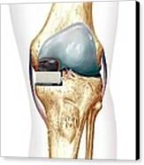 Partial Knee Replacement, Artwork Canvas Print
