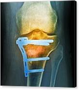 Pinned Broken Knee, X-ray Canvas Print by